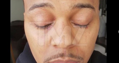 Bow Wow shows off Injuries including bite marks and deep scratches from fight with his girlfriend (photos)